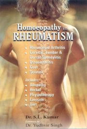 Homeopathy in Rheumatism, Dr. S.L. Kumar, A TO M Books, Vedic Books ,